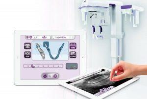 Безвредность дентальной рентген-диагностики