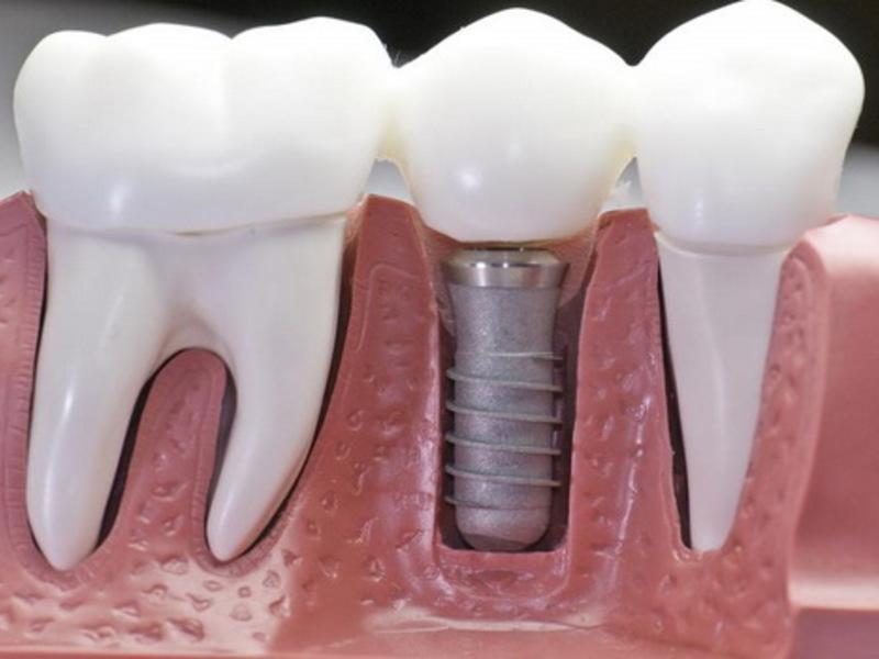 Процедура наращивания зуба на штифт