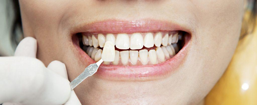 Реставрация зубов вкладками винирами
