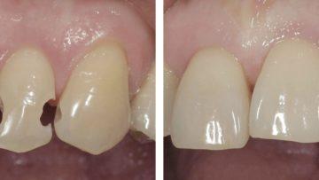 Композитная реставрация зубов