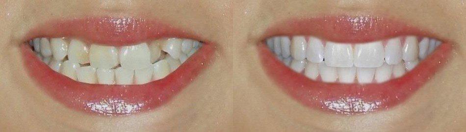 Реставрация зубов композитом