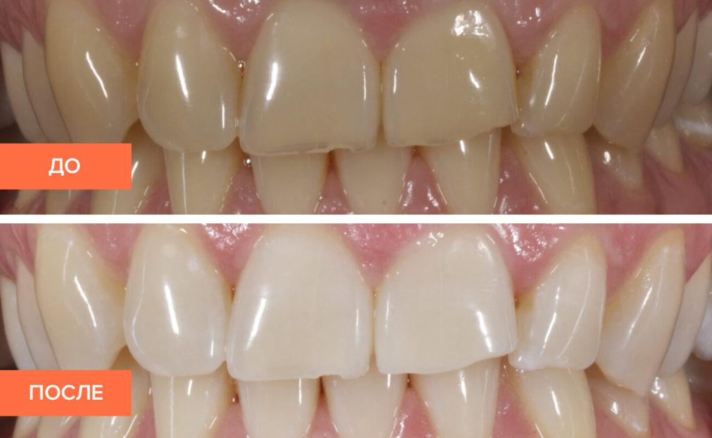 Отбеливание зубов Zoom 3: этапы